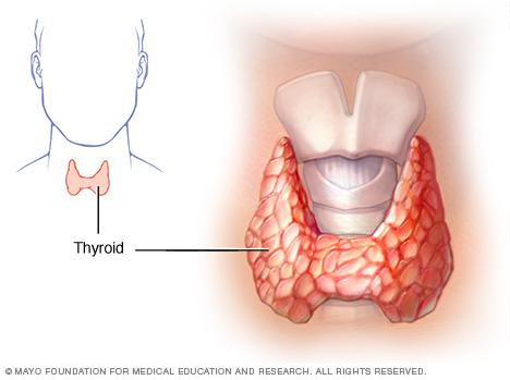 Hipotiroidismul 1