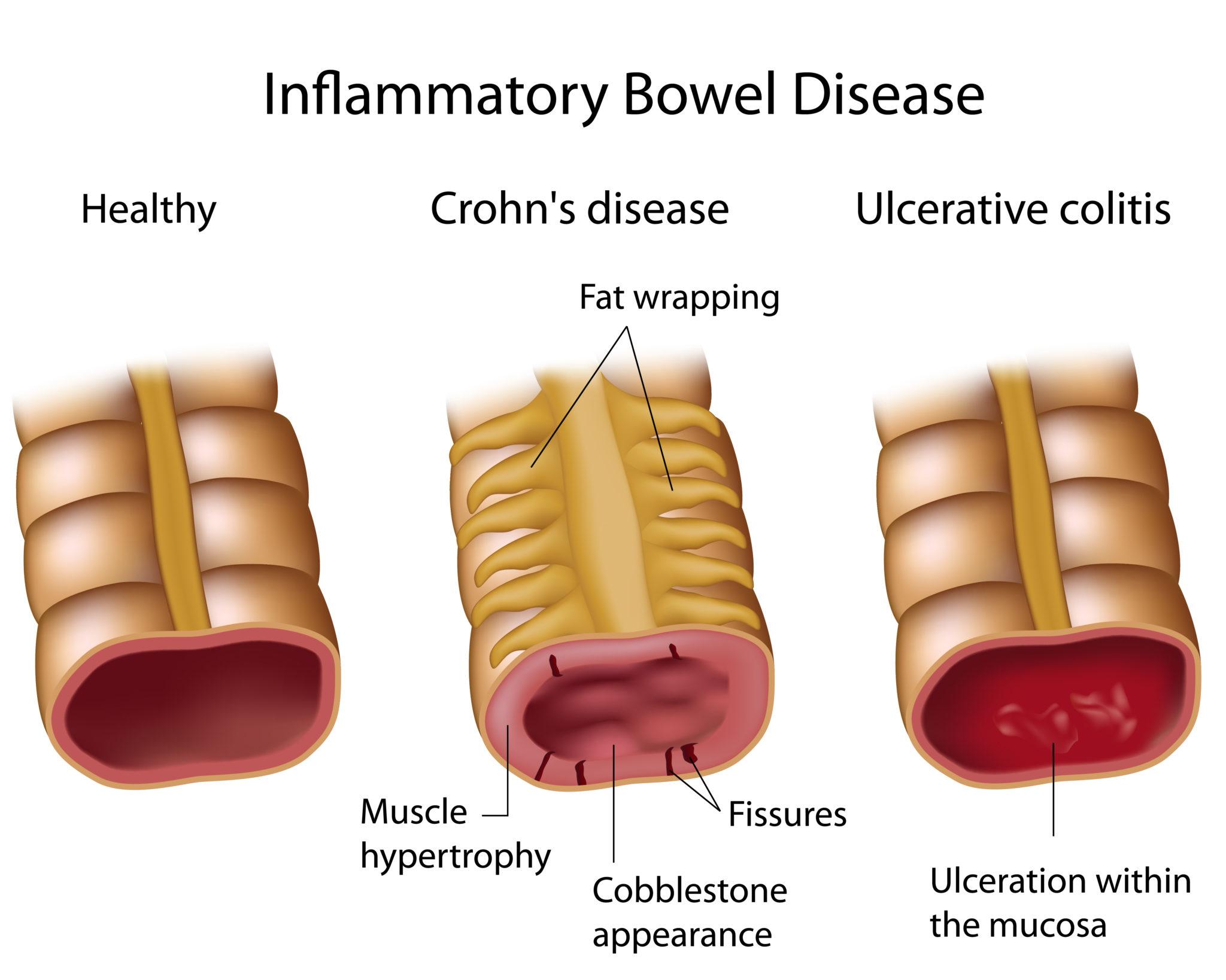 cum să piardă în greutate cu boala crohn chirothin pierderi în greutate recenzii