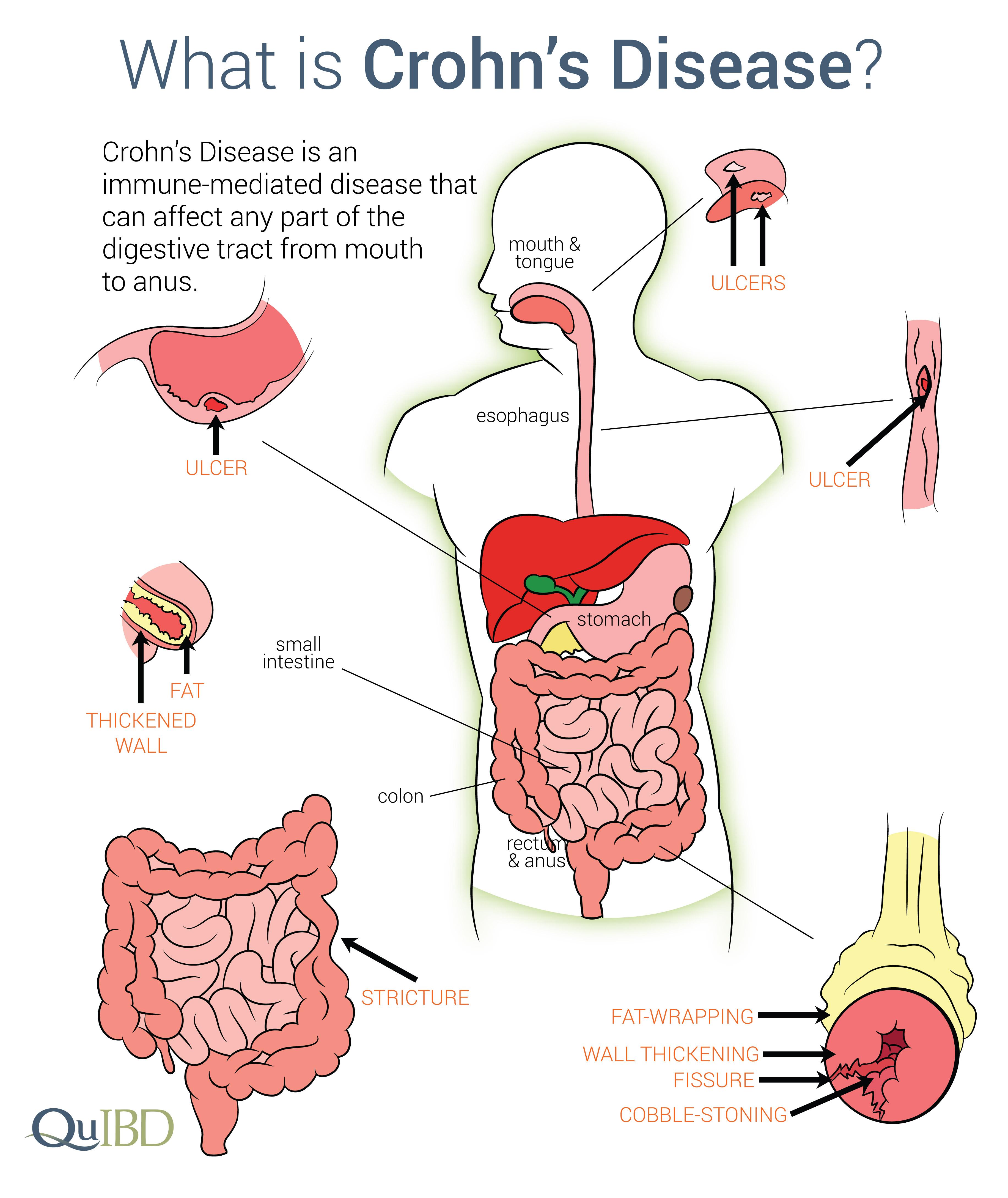 cum să piardă în greutate cu boala crohn)