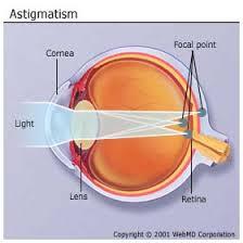 Astigmatism 2