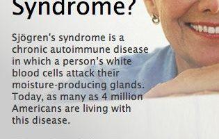 La sindrome di Sjogren è una malattia autoimmune che colpisce le ghiandole che sono responsabili di mantenere gli occhi, la bocca e altre parti del corpo e parti del corpo che sono umide e lubrificate Questo perché gli occhi secchi sono comuni nella sindrome di Sjogren.