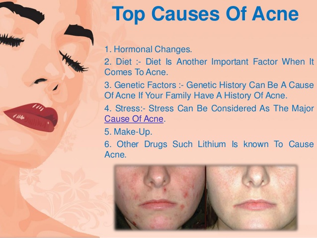 acne-no-more-review-getting-rid-of-acne-scars-4-638