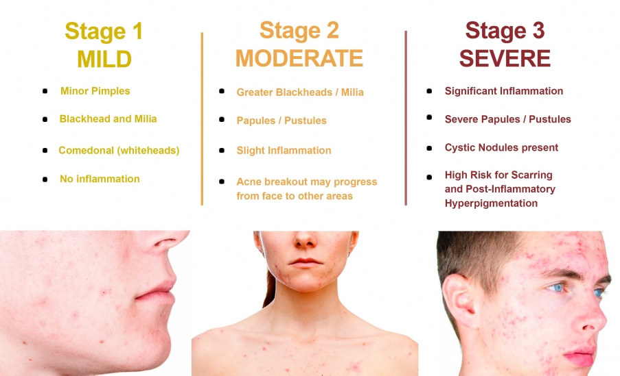 acne stages