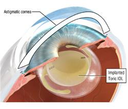 astigmatism procedure
