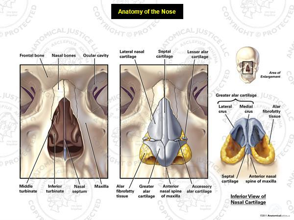 This exhibit depicts the bony and soft tissue anatomy of the nose. Anterior bony structures include: the nasal bones, inferior turbinate, middle turbinate, nasal septum, and maxilla. Anterior soft tissues include: lateral nasal cartilages, septal cartilage, lesser alar cartilages, greater alar cartilages, accessory alar cartilages, and alar fibrofatty tissues. Inferiorly, the lateral and medial crura of the greater alar cartilages can be seen, along with the septal cartilage.