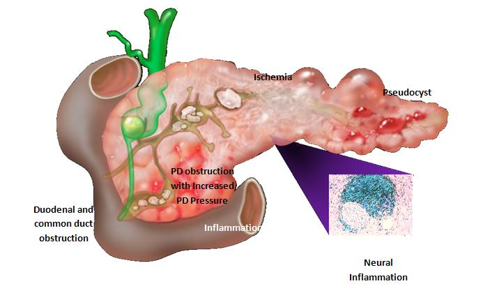 pancreatitis6