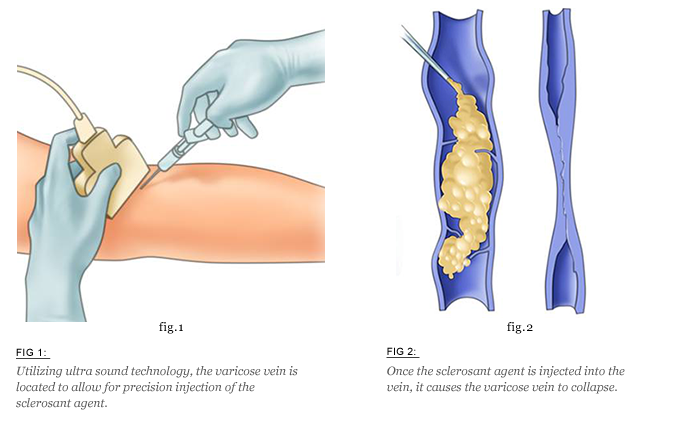 sclerotherapy-vein-treatment