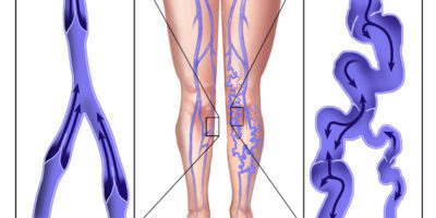 Le vene varicose sono vene allargate contorte. Qualsiasi vena diventa varicosa. Tuttavia, le visualizzazioni che hanno maggiori probabilità di essere colpite sono quelle nelle gambe o nei piedi.