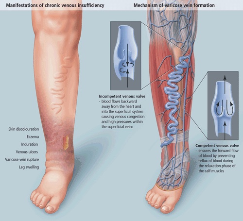 Chronic Venous Insufficiency 1