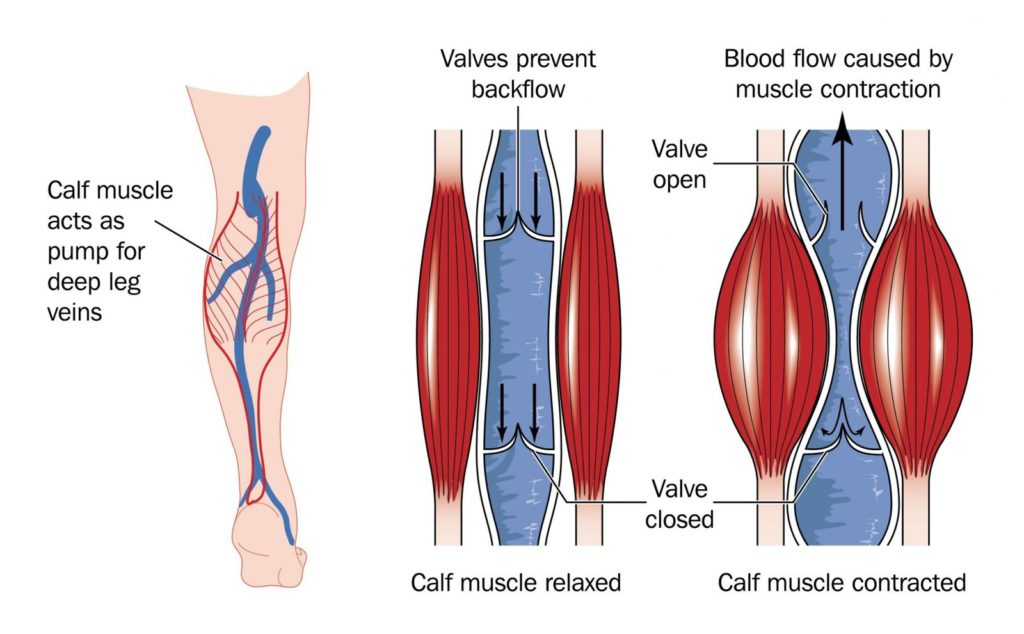 Chronic Venous Insufficiency 2