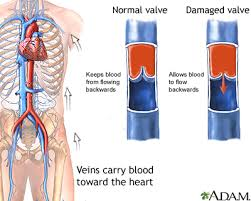 Chronic Venous Insufficiency6