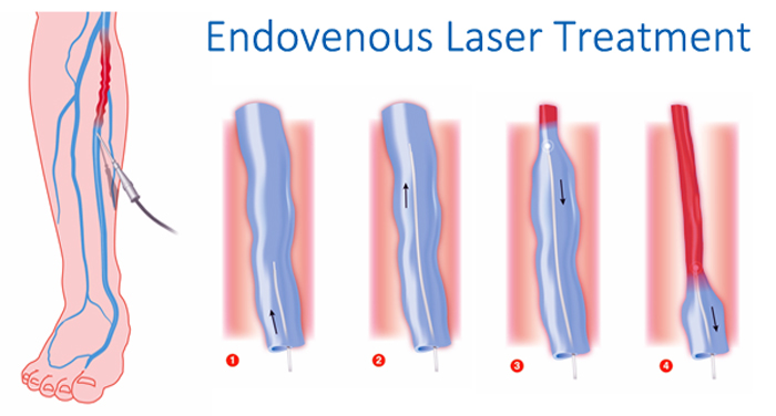 Endovenous-Laser-Treatment