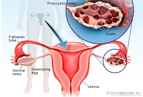 detail_polycystic_ovary_syndrome