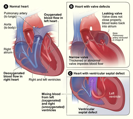 սրտի տրավմա