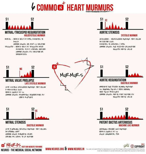 heartmurmer2