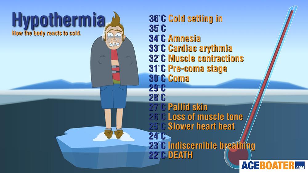 Hypothermie-Grafik