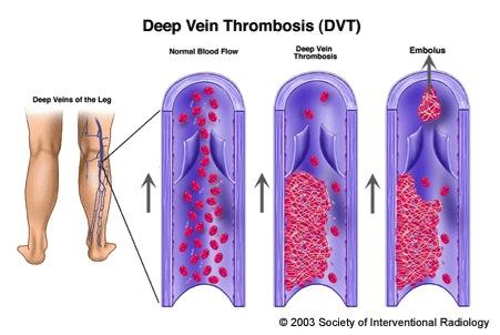 ir-veinthrombosis (1)