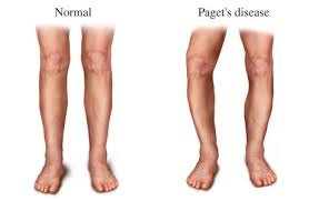 pagets Diseases