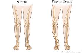pagets Diseases1