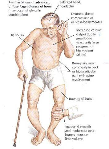 pagets Diseases2