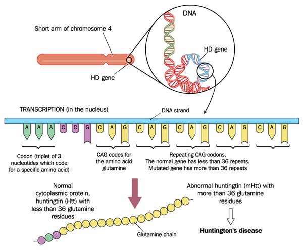 h-huntingtons-disease-hd