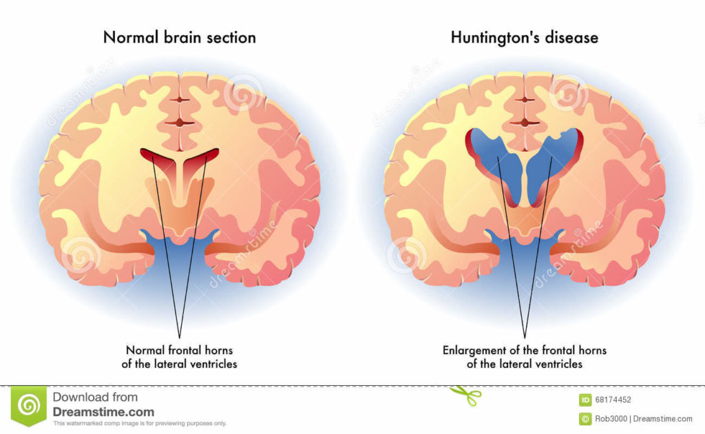huntington-s-disease-medical-illustration-symptoms-brain-68174452