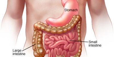 L'influenza dello stomaco o la gastroenterite virale è un'infezione interna nota per i seguenti: crampi addominali, vomito, nausea, diarrea acquosa e talvolta febbre.