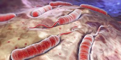 Il colera è una malattia batterica che si diffonde normalmente attraverso l'acqua contaminata. Il colera causa disidratazione e grave diarrea. Se il colera non viene trattato, può essere fatale in poche ore, anche in persone considerate sane.