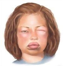 causes-of-angioedema