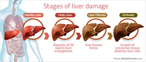 liver-cirrhosis4