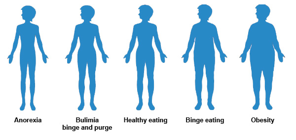 causes-of-anorexia-nervosa