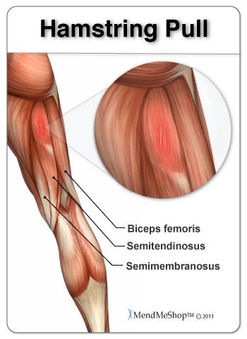 Hamstring Pull. Biceps femoris, semitendinosys, semimembranosus. MendMeShop TM ©2011