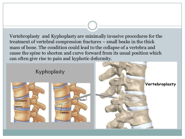 vertebroplasty और kyphoplasty उपचार-2-638