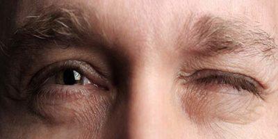 Goedaardig essentieel blefarospasme, oogtrekkingen, Lorazepam (Ativan) Clonazepam (Klonopin), Trihexyphenidylhydrochloride, Artane, Trihexane, Tritane)