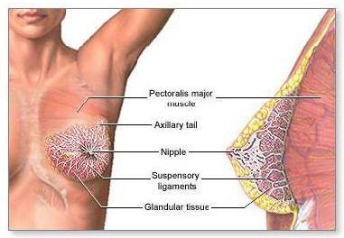 intraductal-carcinoma