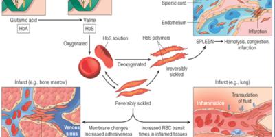 Un esame del sangue può verificare l'emoglobina S - la forma difettosa di emoglobina che sottolinea l'anemia falciforme. Negli Stati Uniti, il test del sangue fa parte dello screening neonatale di routine eseguito all'ottica