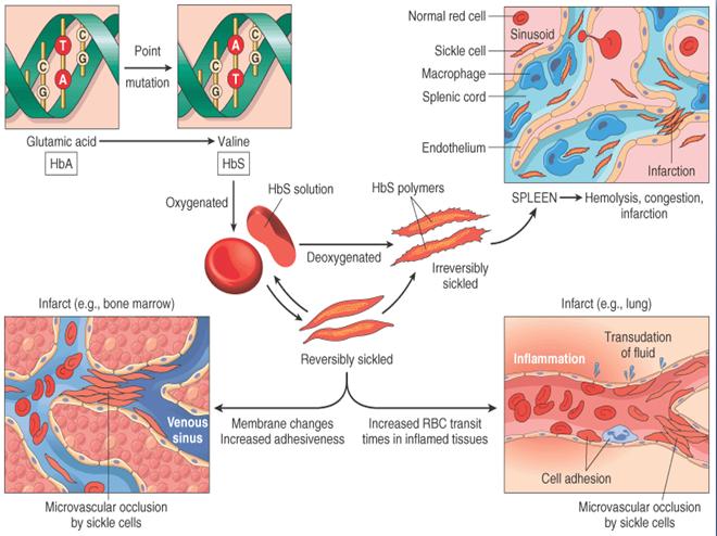 Kawasaki Disease Management Ppt