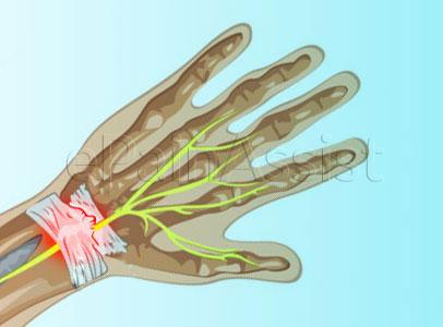 wrist-sprain-1