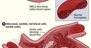anemia falciforme è una forma genetica ed ereditaria di anemia - una condizione in cui qui non sono sufficienti globuli rossi sani per trasportare ossigeno adeguato in tutto il corpo.