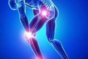 관절통, 류마티스 관절염, 골관절염, 활액낭염, 통풍, 염좌