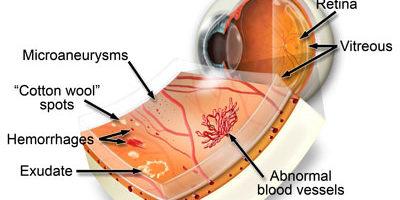 La retinopatia diabetica è una condizione causata da diabete che colpisce l'occhio. È provocato da danni ai vasi sanguigni del tessuto sensibile alla luce nella parte posteriore della retina all'interno dell'occhio.
