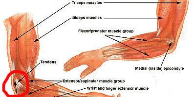 Il gomito è un'articolazione composita dell'arto superiore costituita da omero articolare e due ossa dell'avambraccio, principalmente ulna e raggio.