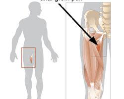 Un ceppo inguinale è una lesione o una rottura danneggiati a uno qualsiasi dei muscoli adduttori che producono dolore nella parte interna della coscia. Le lesioni all'inguine possono variare in gravità da molto lieve a molto crociera in cui la lesione è completamente debilitante.