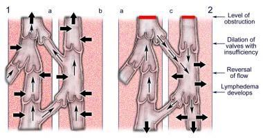 Linfedema è una combinazione di liquidi che causa gonfiore (edema) nelle aree del corpo. Succede tipicamente nelle braccia o nelle gambe. A volte può accadere contemporaneamente braccia e gambe.