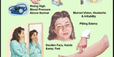 hoë druk | Health Life Media