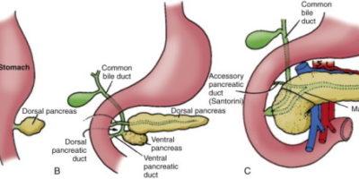 La divisione del pancreas è un'anomalia congenita comune presente durante la nascita che si verifica all'interno del / i condotto / i pancreatico / i.