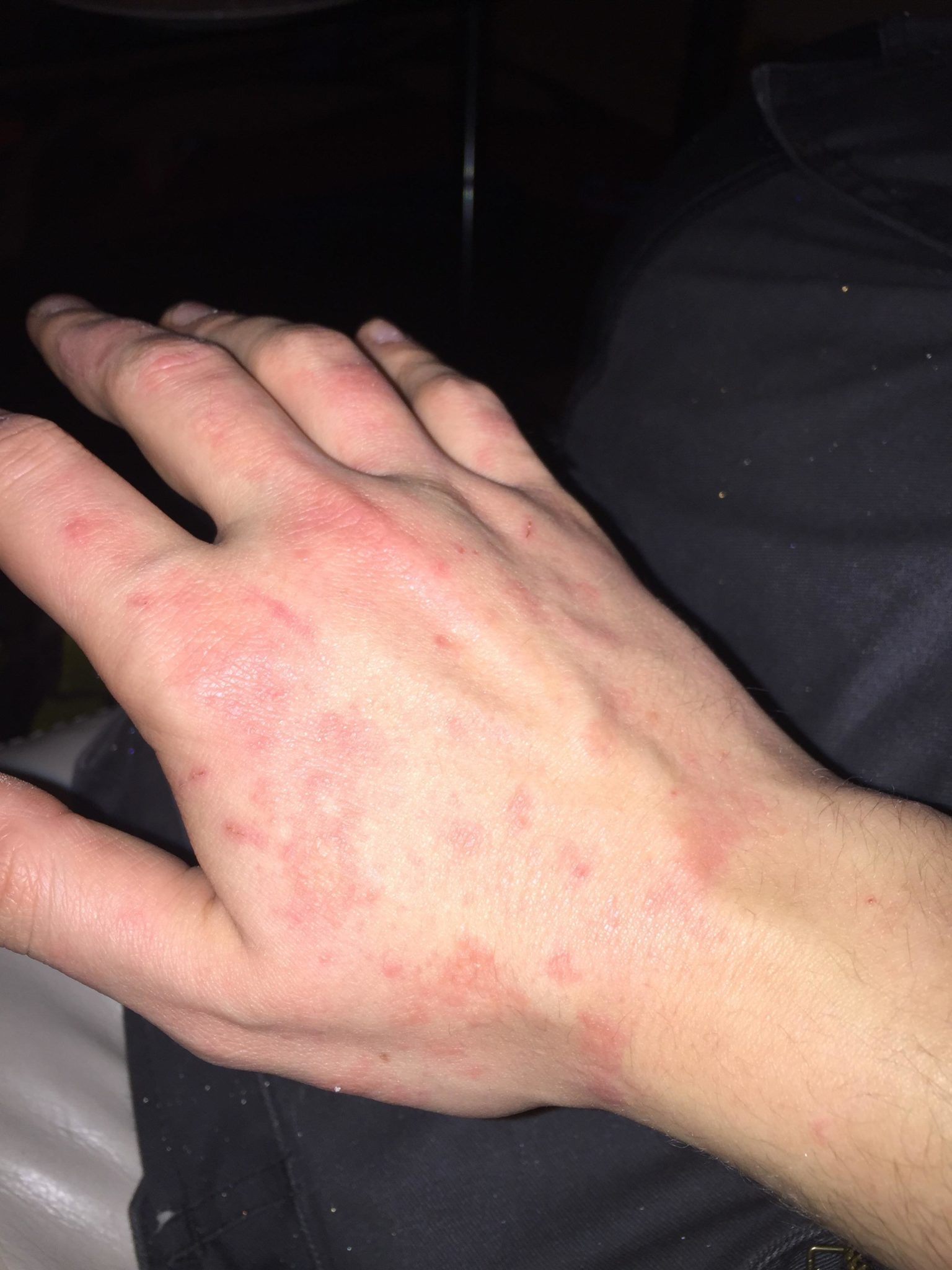Hand & Arm Acne | Health Life Media
