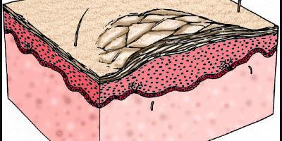 ਲਸਿਕਾਕਰਣ, ਫਿਣਸੀ ਦੀ ਚਮੜੀ, ਸੁੱਕਾ ਅਤੇ ਲਚਕੀਲਾ ਚਮੜੀ