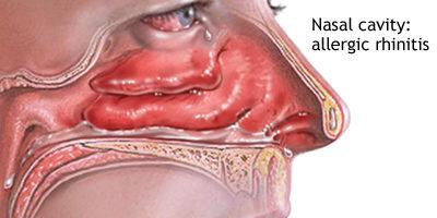 네일 냄비, 네일 냄비, 비강 알레르기, 알레르기 비염, 충혈 완화제 코르티코 스테로이드