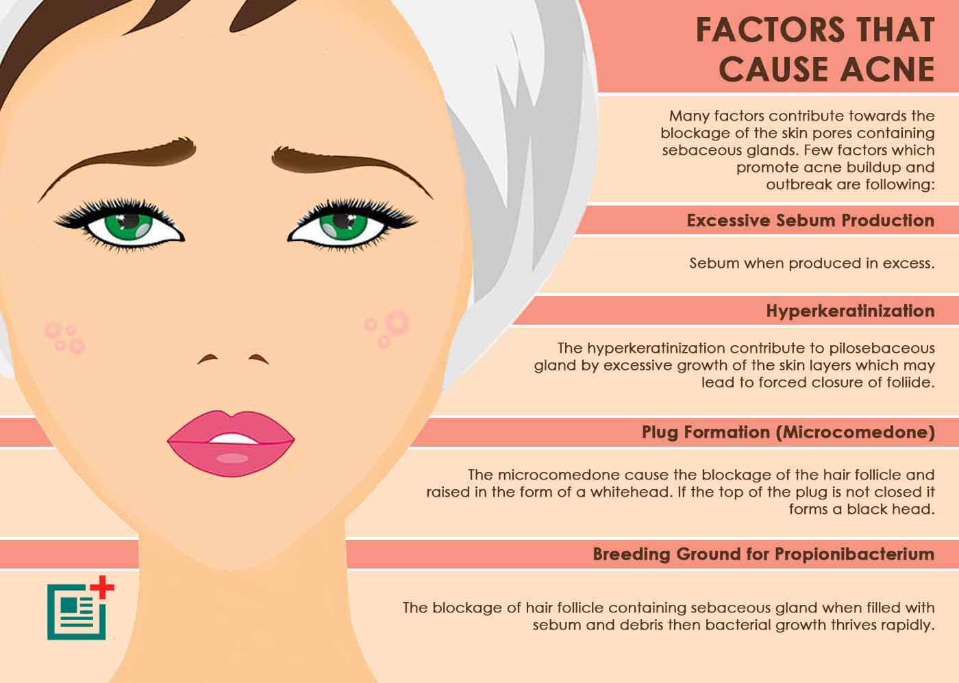 How To Get Rid Of Cystic Acne Pimples Health Life Media